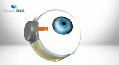 bionic-eye-implant-1